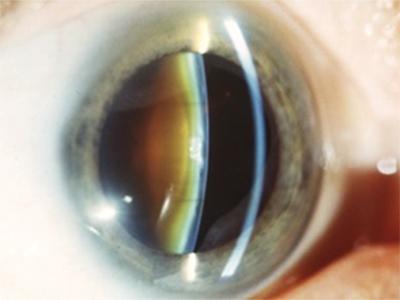 Fortgeschrittene Cataract