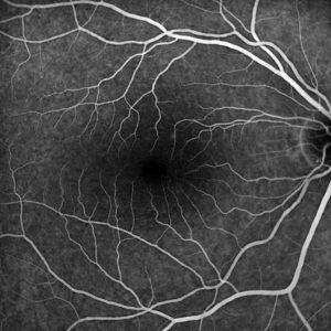 FAG gesundes Auge