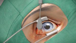 Desinfektion des Auges